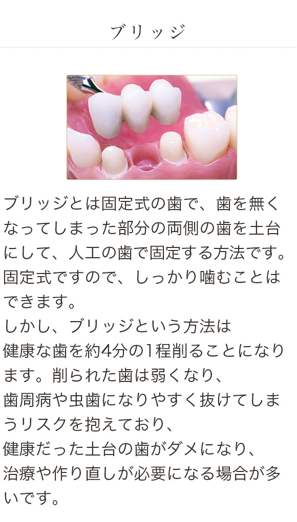 sp_service04_img04-2