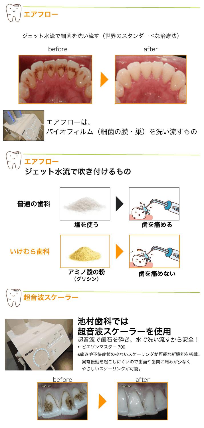 歯周病のメンテナンスクリーニング2