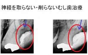 神田中央通りいけむら歯科ドックベストセメント効果